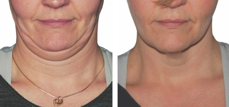 strawberry-lift-before-after